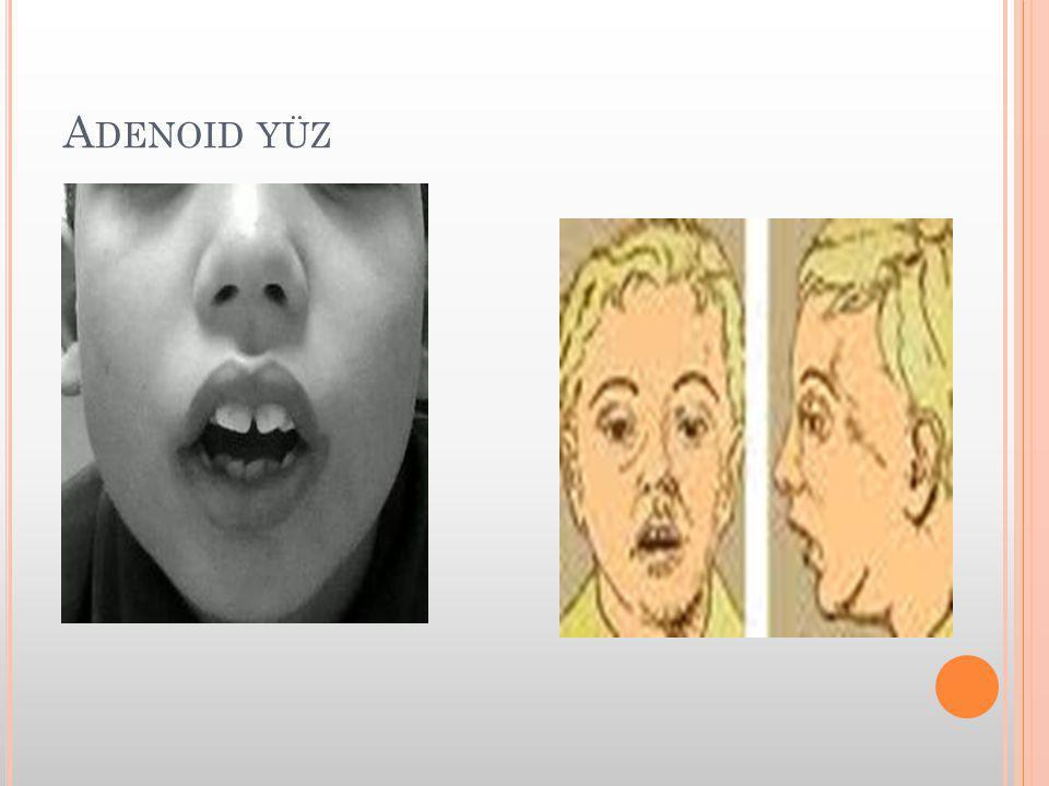 Adenoid yüz