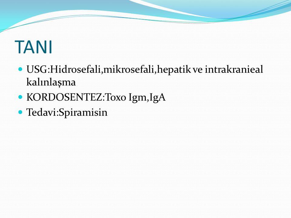 TANI USG:Hidrosefali,mikrosefali,hepatik ve intrakranieal kalınlaşma
