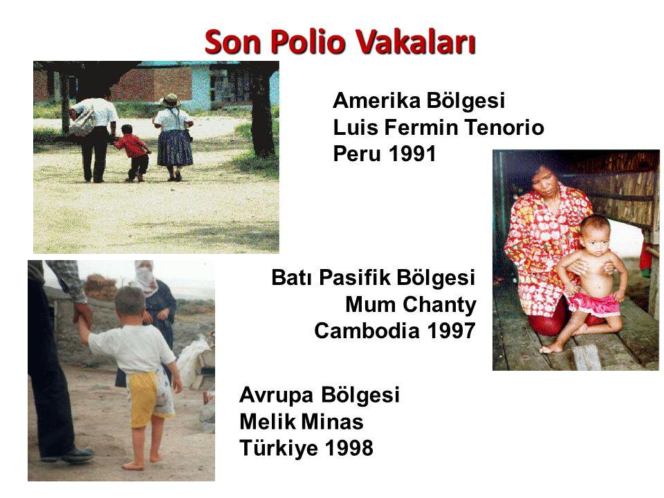 Son Polio Vakaları Amerika Bölgesi Luis Fermin Tenorio Peru 1991