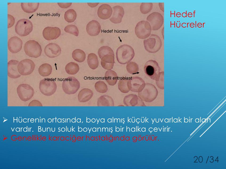 Hedef Hücreler Hücrenin ortasında, boya almış küçük yuvarlak bir alan vardır. Bunu soluk boyanmış bir halka çevirir.