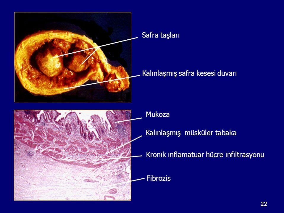 Safra taşları Kalınlaşmış safra kesesi duvarı. Mukoza. Kalınlaşmış müsküler tabaka. Kronik inflamatuar hücre infiltrasyonu.