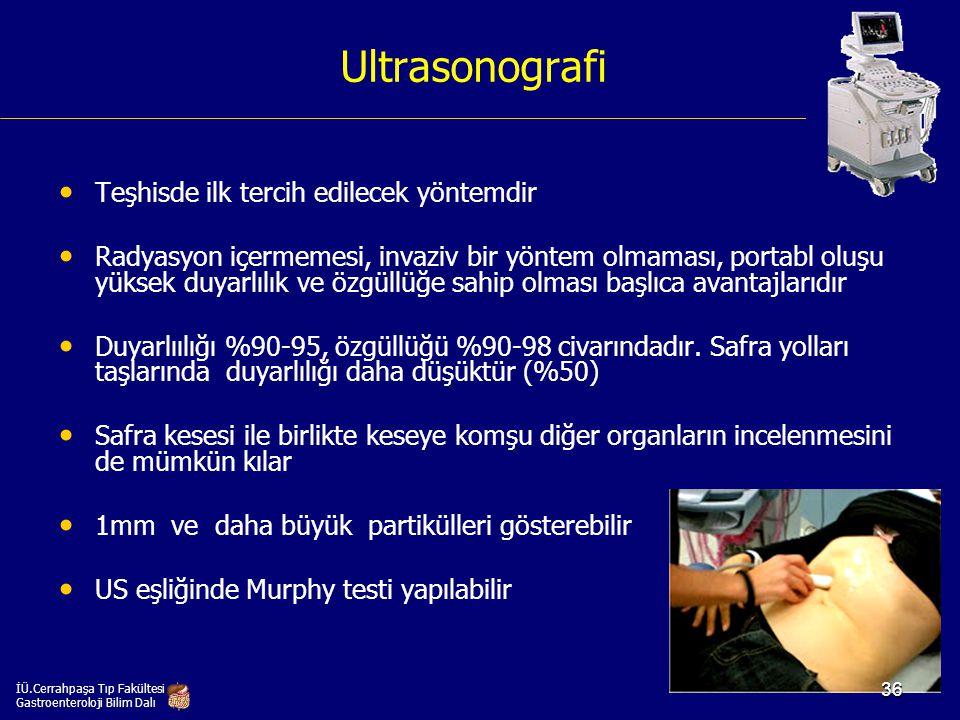 Ultrasonografi Teşhisde ilk tercih edilecek yöntemdir