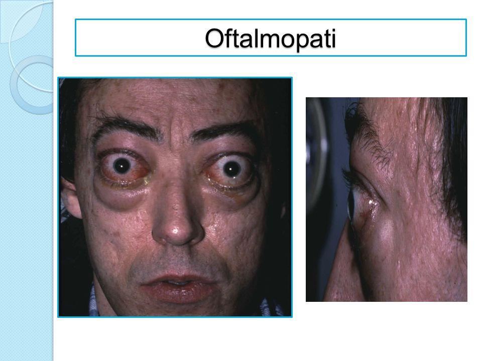 Oftalmopati