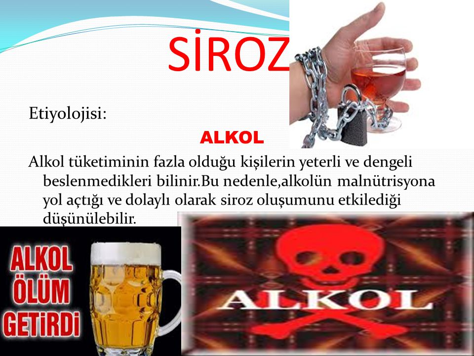 SİROZ Etiyolojisi: ALKOL