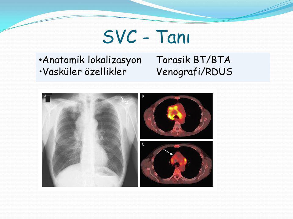 SVC - Tanı Anatomik lokalizasyon Torasik BT/BTA