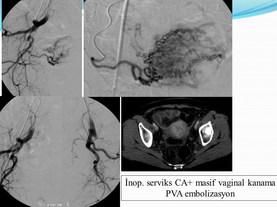 İnop. serviks CA+ masif vaginal kanama