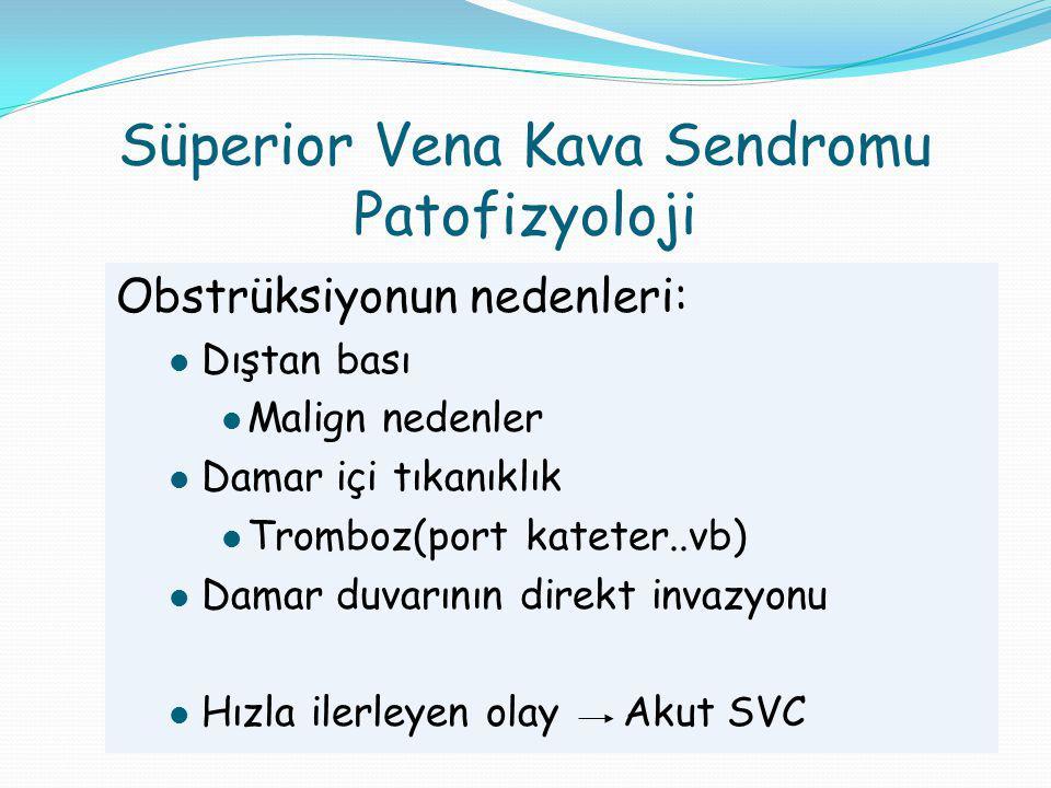 Süperior Vena Kava Sendromu