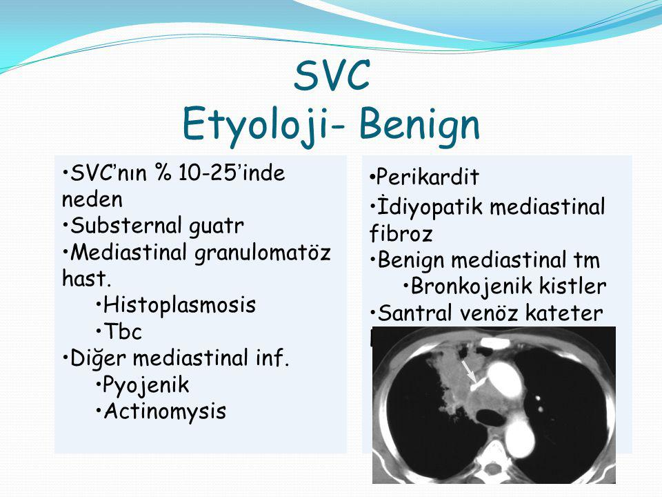 SVC Etyoloji- Benign SVC'nın % 10-25'inde neden Substernal guatr