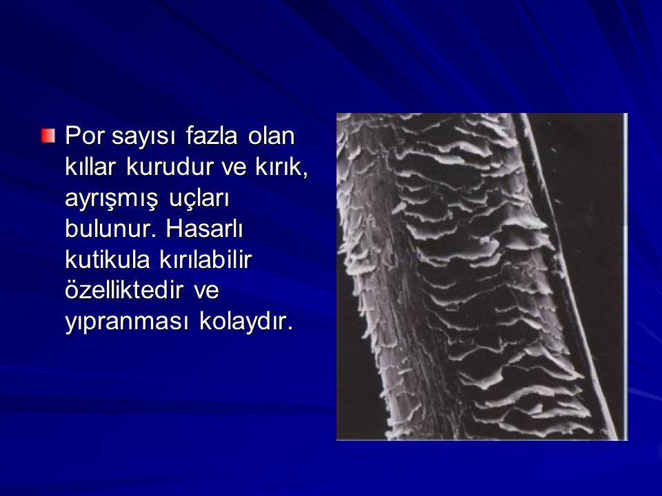 Por sayısı fazla olan kıllar kurudur ve kırık, ayrışmış uçları bulunur