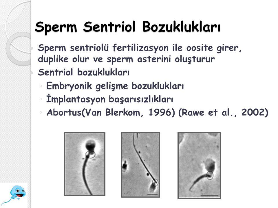Sperm Sentriol Bozuklukları