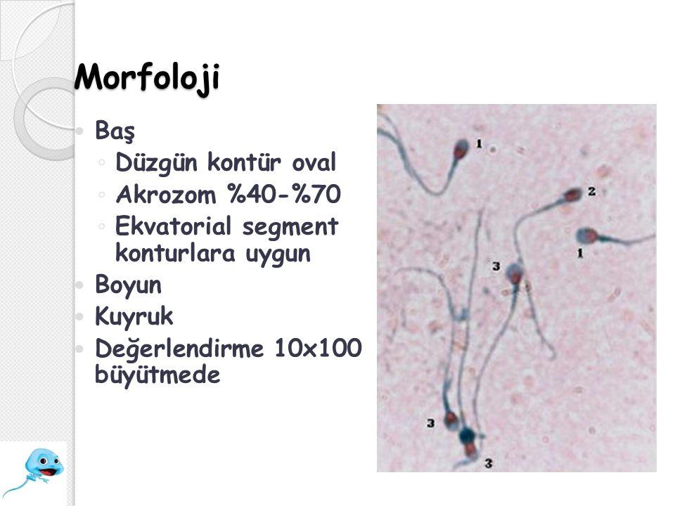 Morfoloji Baş Düzgün kontür oval Akrozom %40-%70