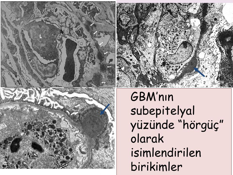 GBM'nın subepitelyal yüzünde hörgüç olarak isimlendirilen birikimler