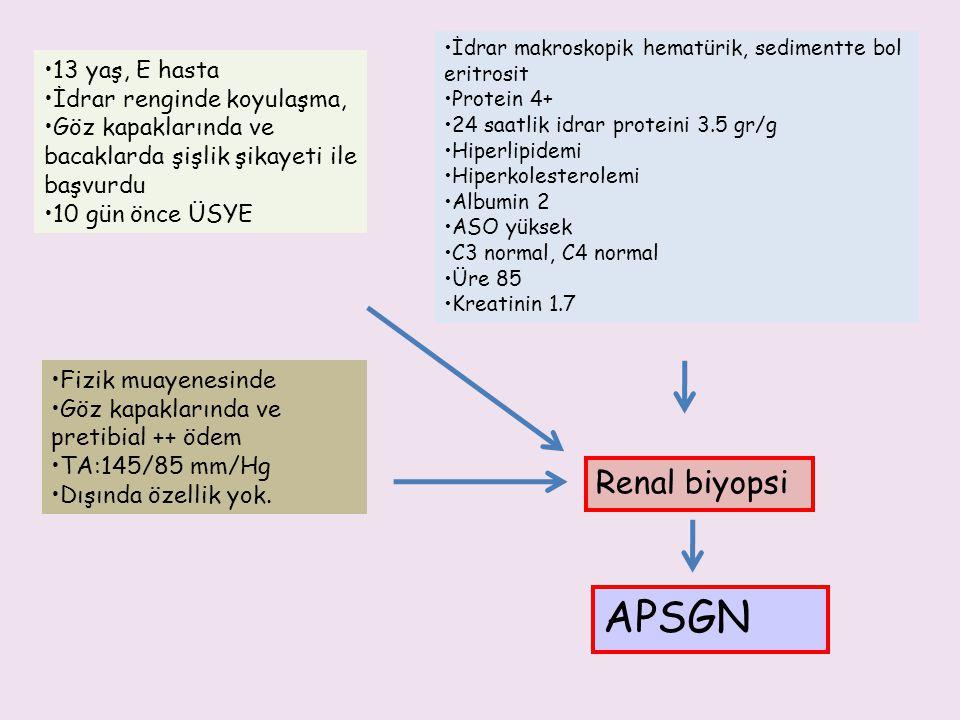 APSGN Renal biyopsi 13 yaş, E hasta İdrar renginde koyulaşma,