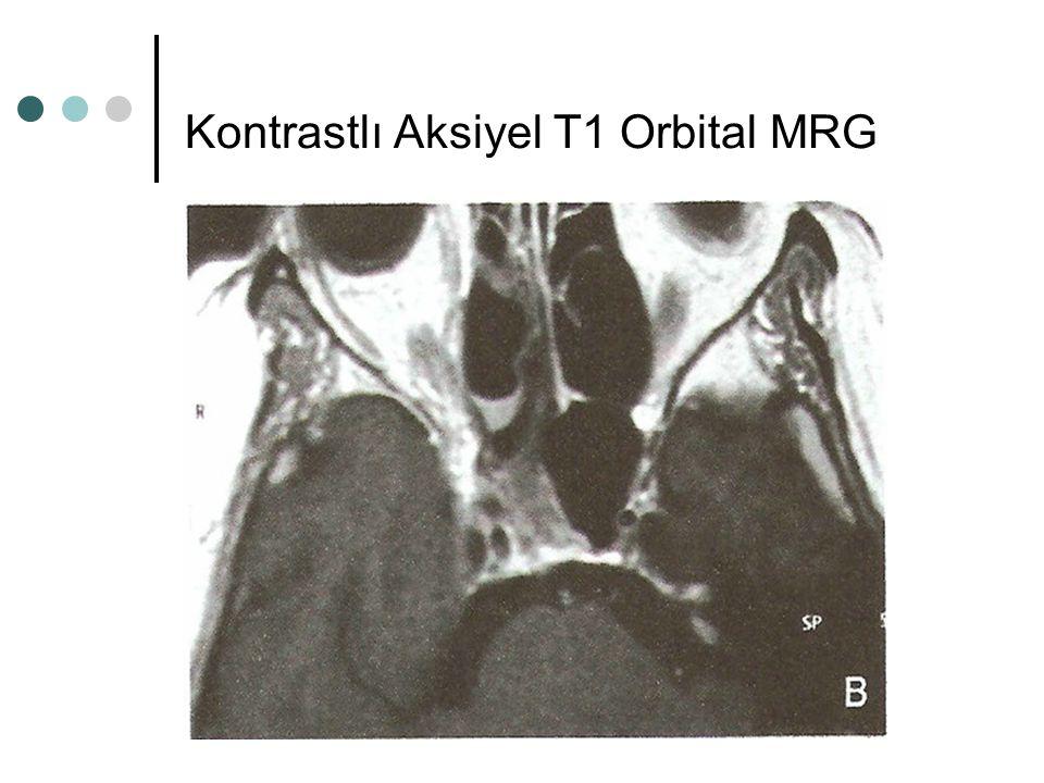 Kontrastlı Aksiyel T1 Orbital MRG
