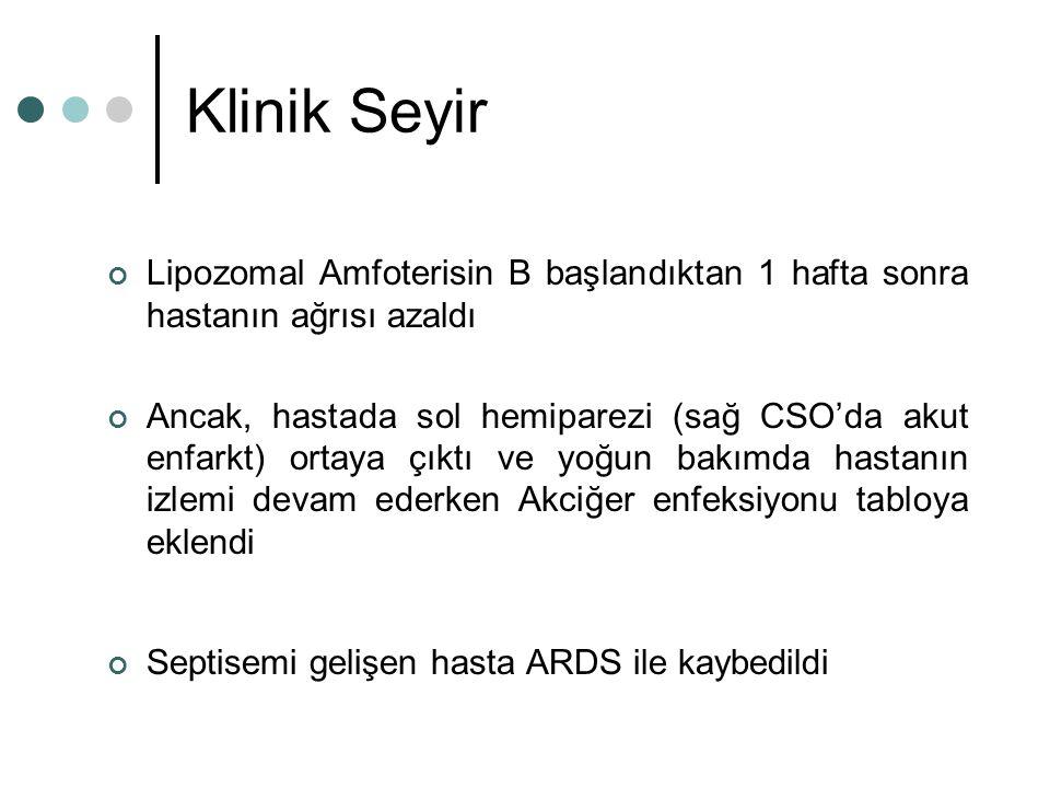 Klinik Seyir Lipozomal Amfoterisin B başlandıktan 1 hafta sonra hastanın ağrısı azaldı.