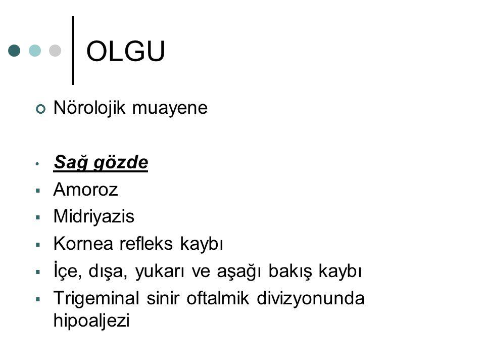 OLGU Nörolojik muayene Sağ gözde Amoroz Midriyazis