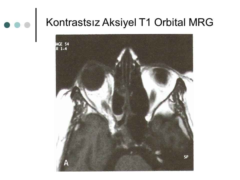 Kontrastsız Aksiyel T1 Orbital MRG