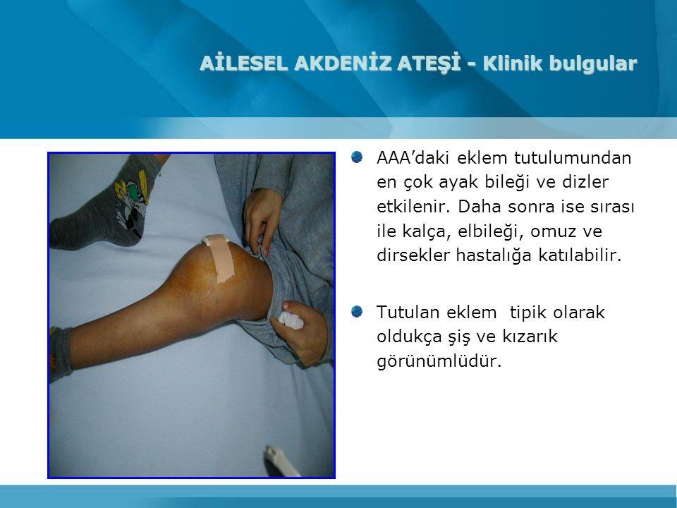 AİLESEL AKDENİZ ATEŞİ - Klinik bulgular