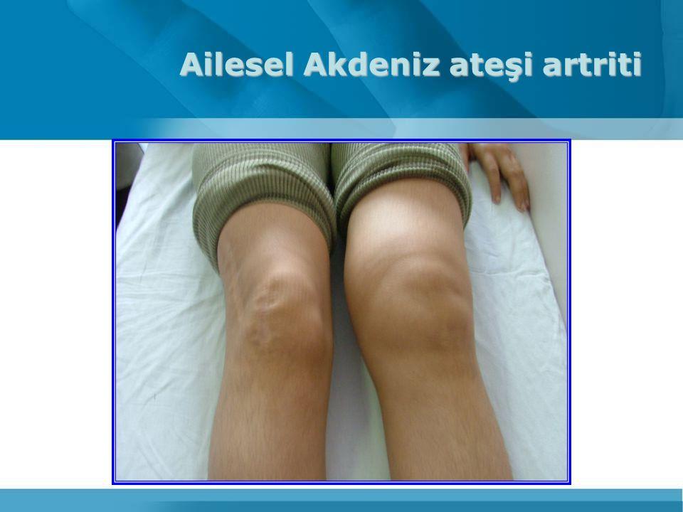 Ailesel Akdeniz ateşi artriti