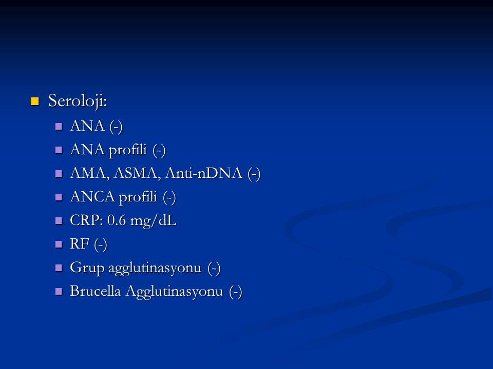 Seroloji: ANA (-) ANA profili (-) AMA, ASMA, Anti-nDNA (-)