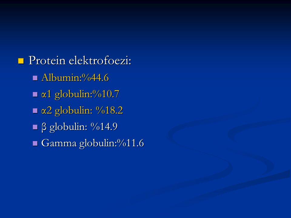 Protein elektrofoezi: