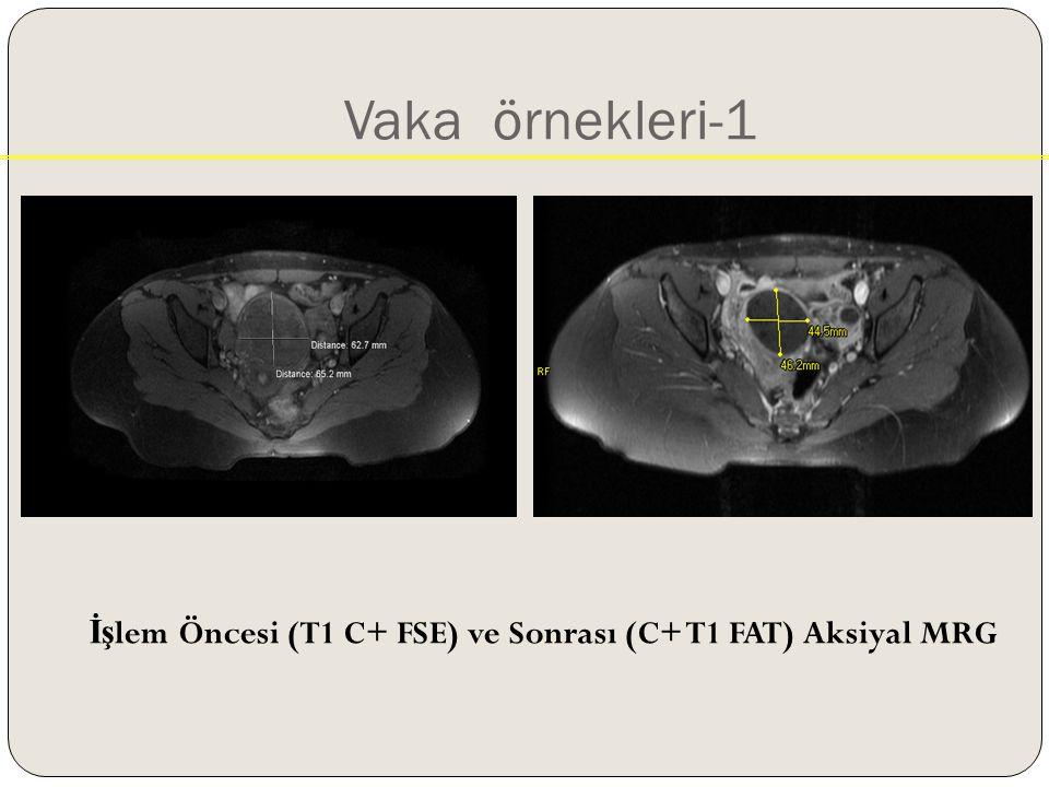 Vaka örnekleri-1 İşlem Öncesi (T1 C+ FSE) ve Sonrası (C+ T1 FAT) Aksiyal MRG