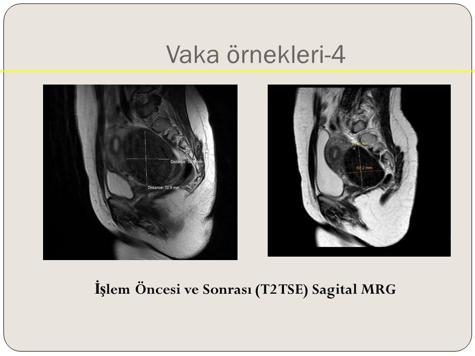 İşlem Öncesi ve Sonrası (T2 TSE) Sagital MRG