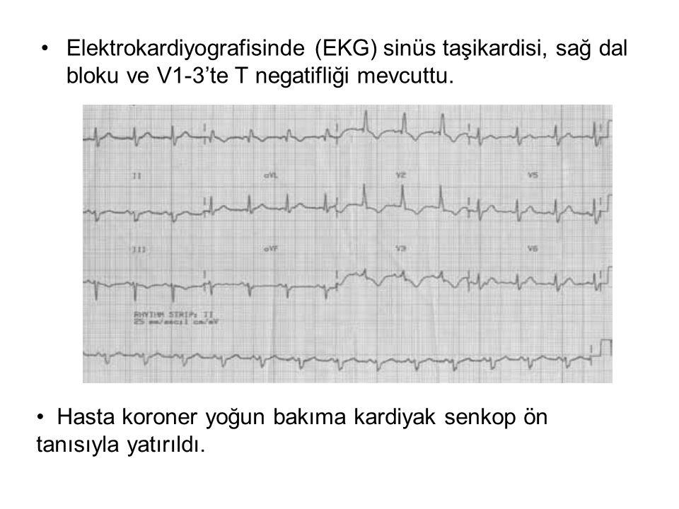 Elektrokardiyografisinde (EKG) sinüs taşikardisi, sağ dal bloku ve V1-3'te T negatifliği mevcuttu.