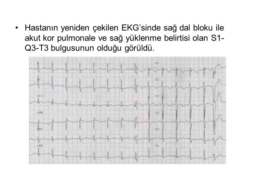 Hastanın yeniden çekilen EKG'sinde sağ dal bloku ile akut kor pulmonale ve sağ yüklenme belirtisi olan S1-Q3-T3 bulgusunun olduğu görüldü.