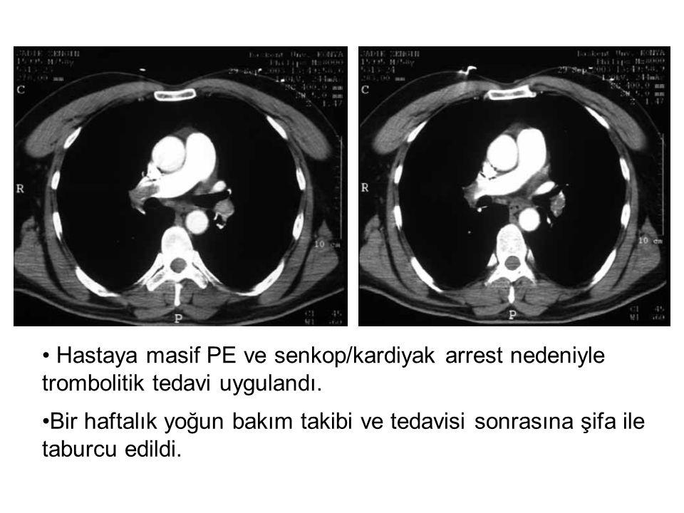 Hastaya masif PE ve senkop/kardiyak arrest nedeniyle trombolitik tedavi uygulandı.