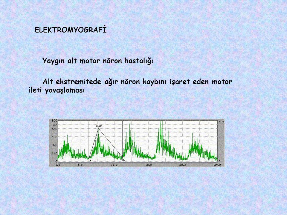 ELEKTROMYOGRAFİ Yaygın alt motor nöron hastalığı.