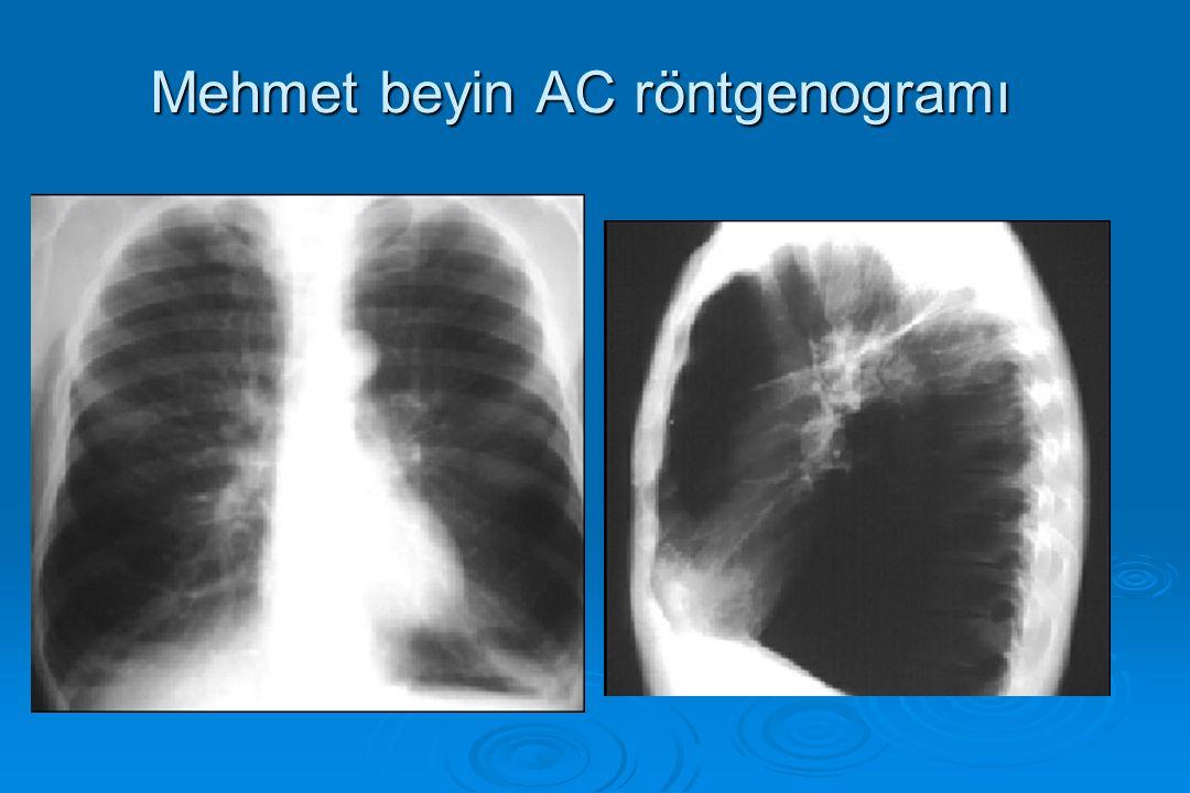 Mehmet beyin AC röntgenogramı