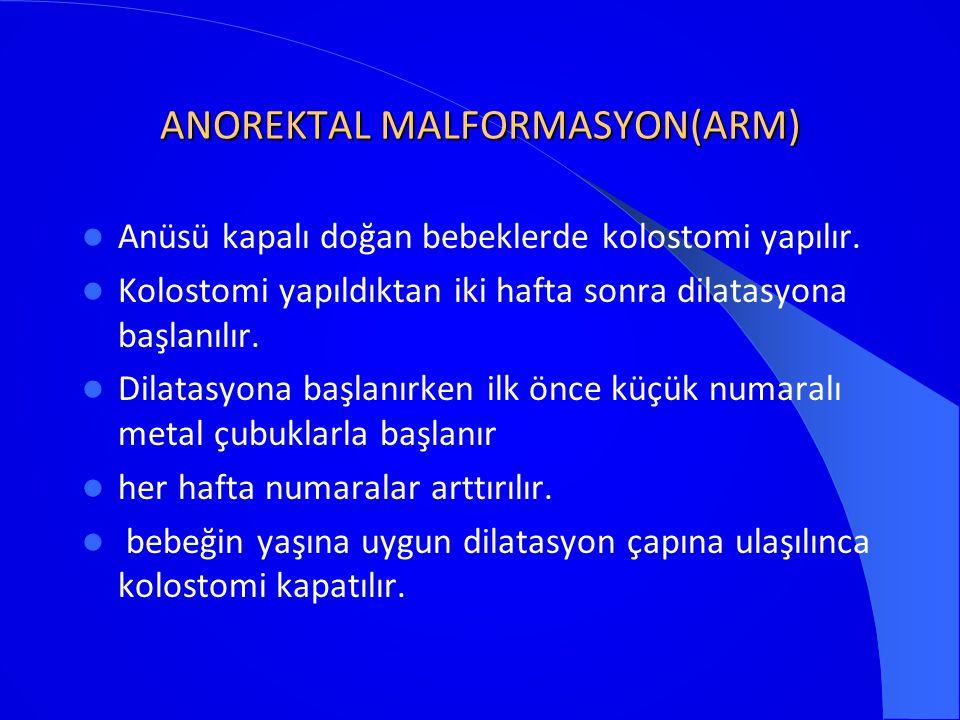 ANOREKTAL MALFORMASYON(ARM)