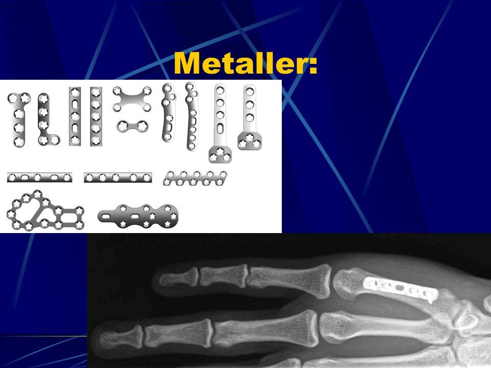 Metaller: