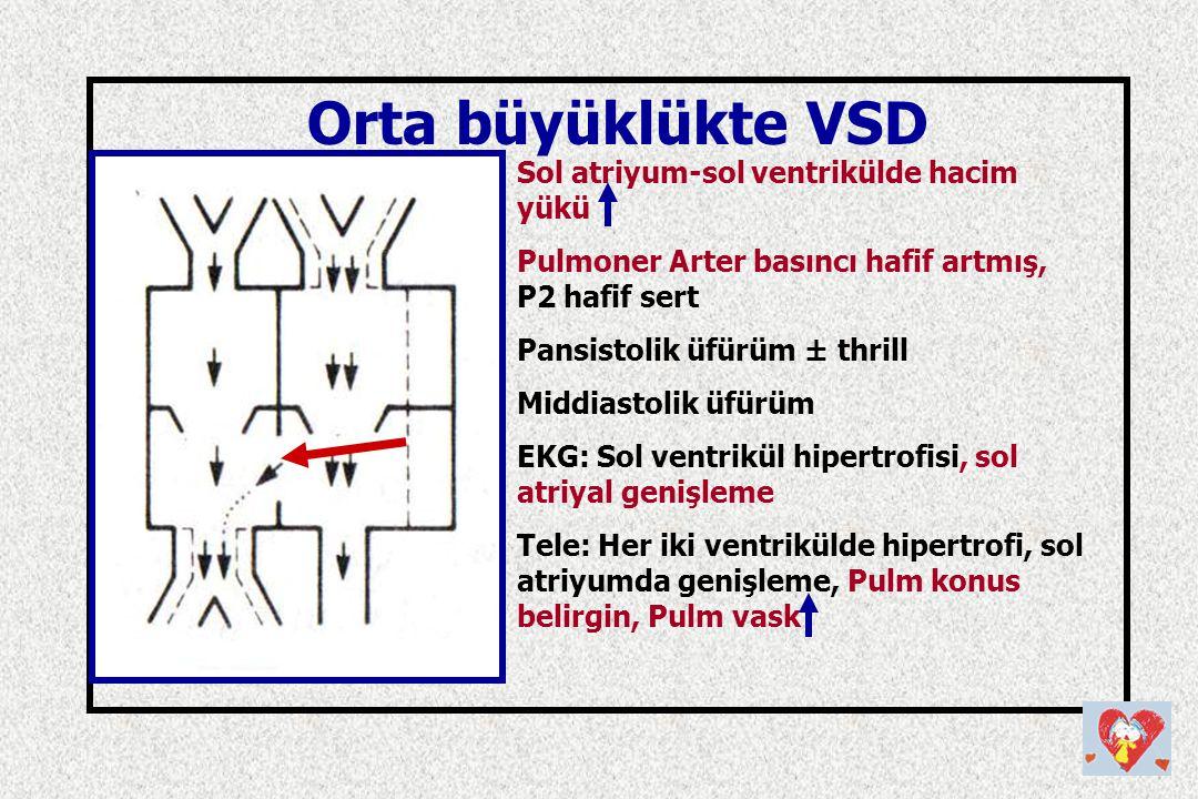 Orta büyüklükte VSD Sol atriyum-sol ventrikülde hacim yükü