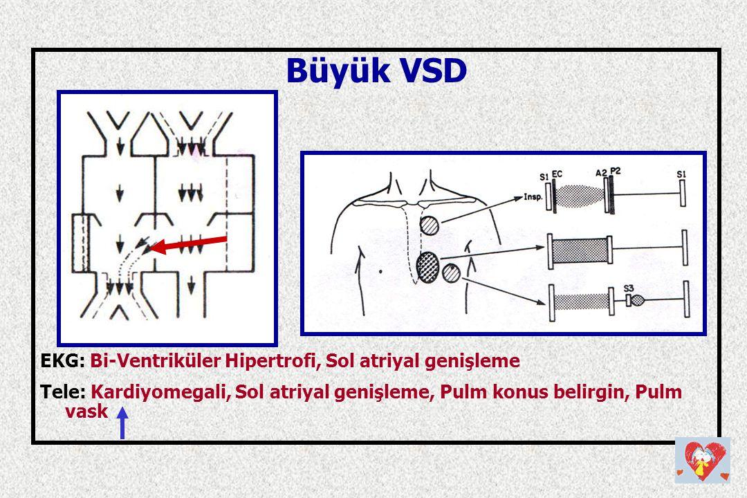 Büyük VSD EKG: Bi-Ventriküler Hipertrofi, Sol atriyal genişleme