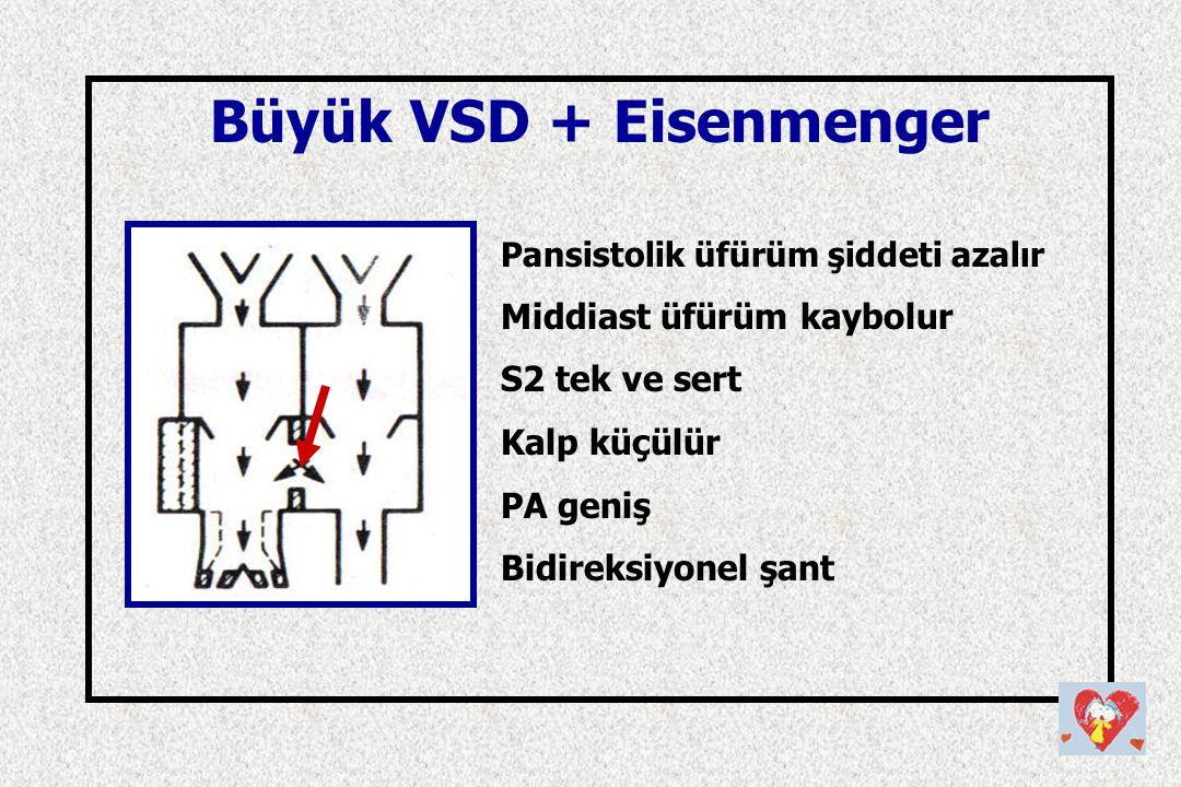 Büyük VSD + Eisenmenger