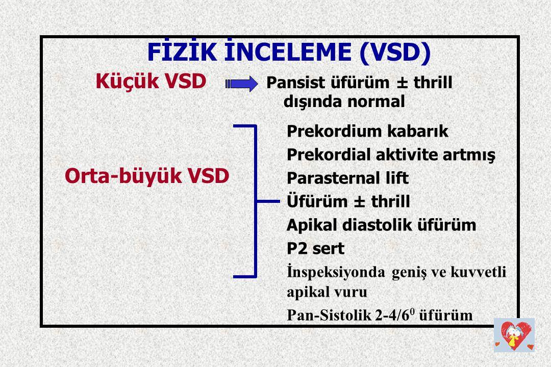 Küçük VSD Pansist üfürüm ± thrill dışında normal