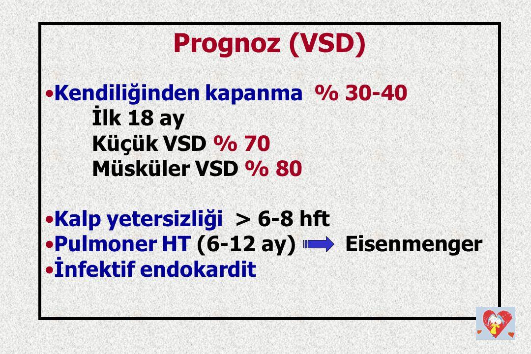 Prognoz (VSD) Kendiliğinden kapanma % 30-40 İlk 18 ay Küçük VSD % 70