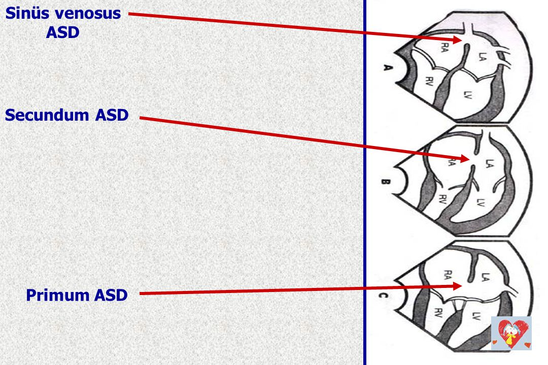 Sinüs venosus ASD Secundum ASD Primum ASD