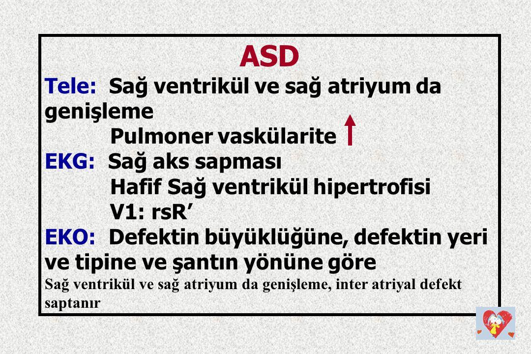 ASD Tele: Sağ ventrikül ve sağ atriyum da genişleme