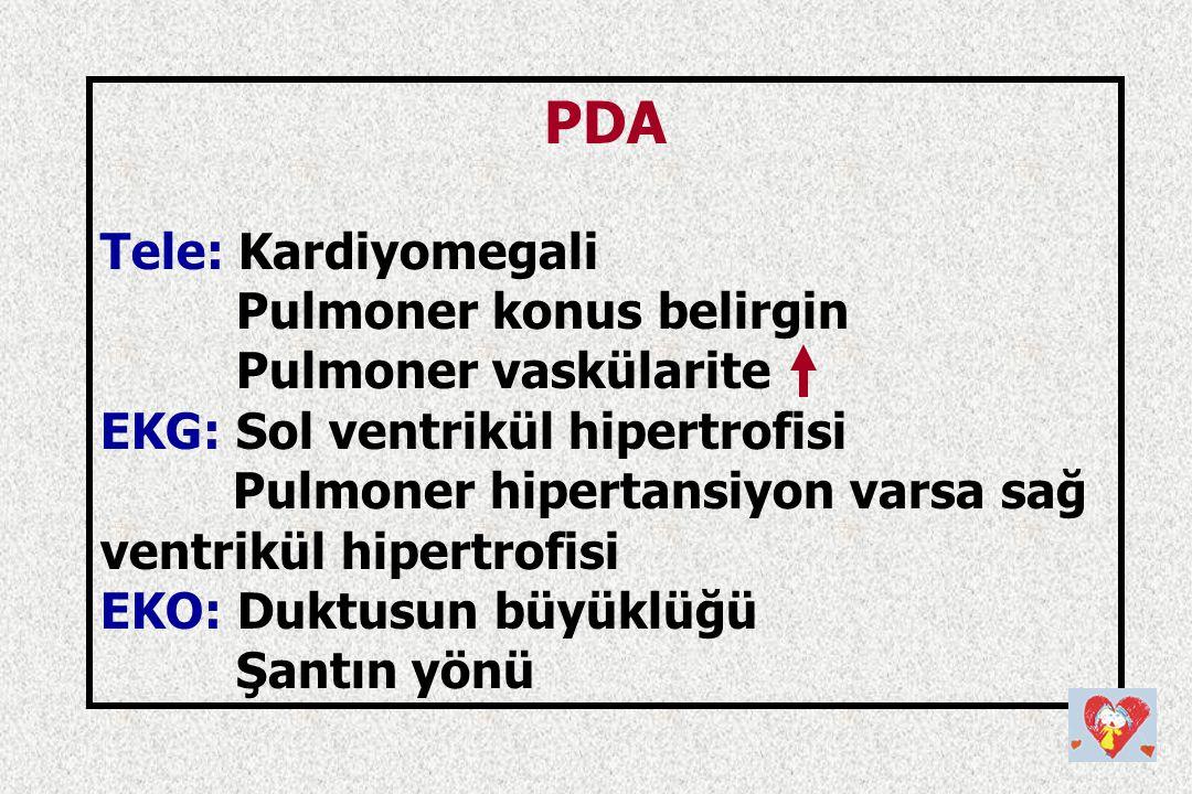 PDA Tele: Kardiyomegali Pulmoner konus belirgin Pulmoner vaskülarite