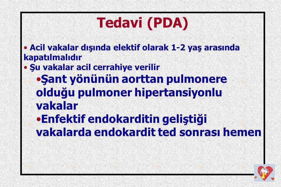 Tedavi (PDA) Acil vakalar dışında elektif olarak 1-2 yaş arasında kapatılmalıdır. Şu vakalar acil cerrahiye verilir.