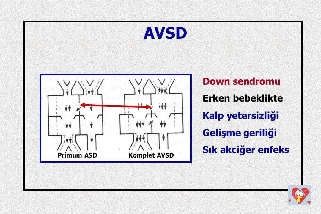 AVSD Down sendromu Erken bebeklikte Kalp yetersizliği Gelişme geriliği