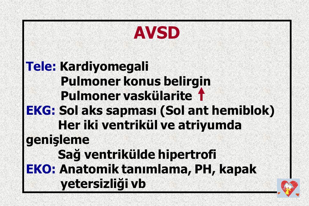 AVSD Tele: Kardiyomegali Pulmoner konus belirgin Pulmoner vaskülarite