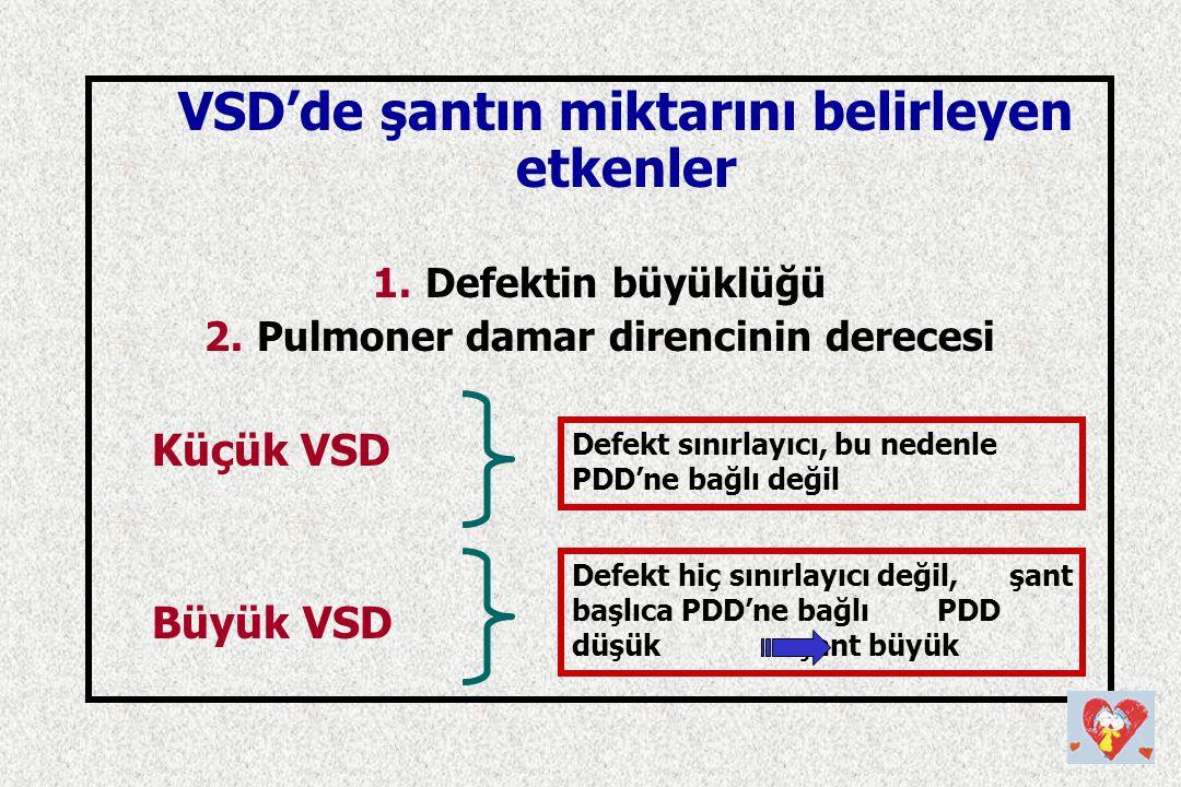 Küçük VSD Büyük VSD VSD'de şantın miktarını belirleyen etkenler