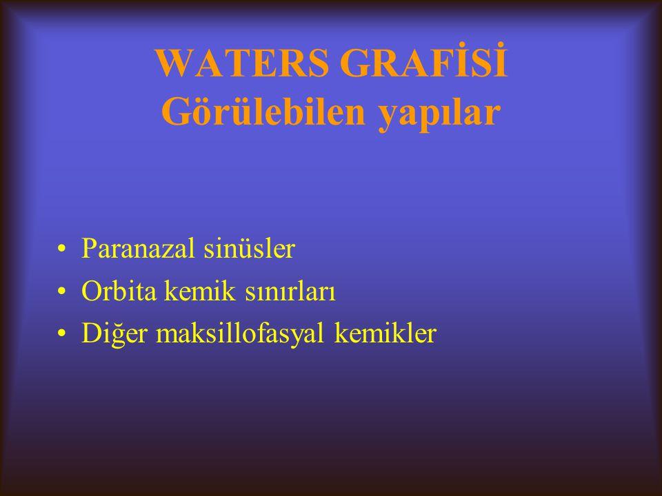WATERS GRAFİSİ Görülebilen yapılar