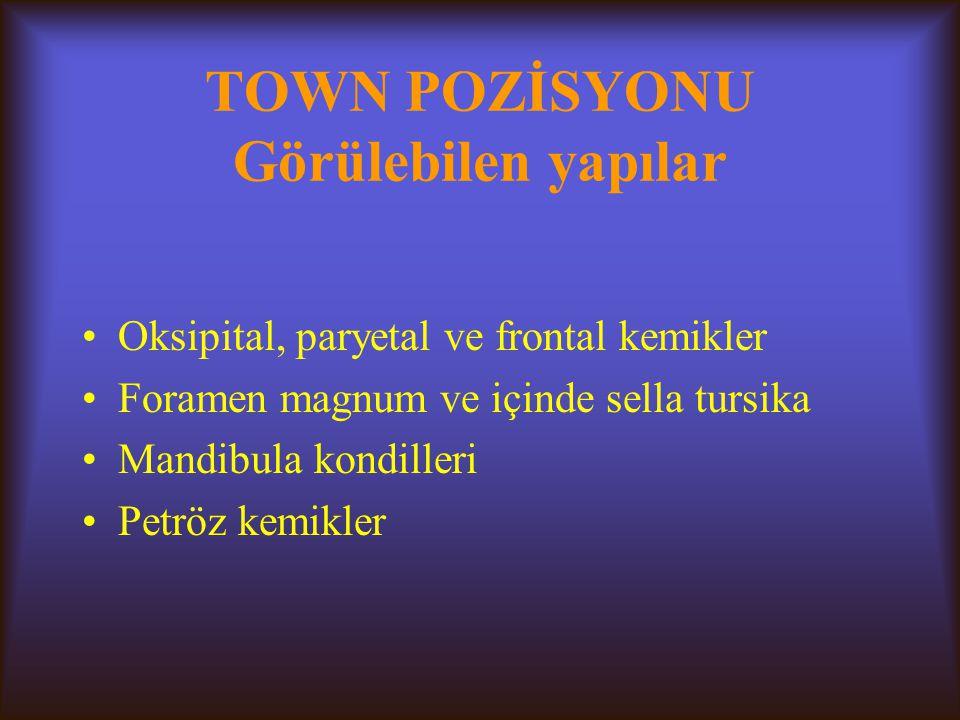 TOWN POZİSYONU Görülebilen yapılar