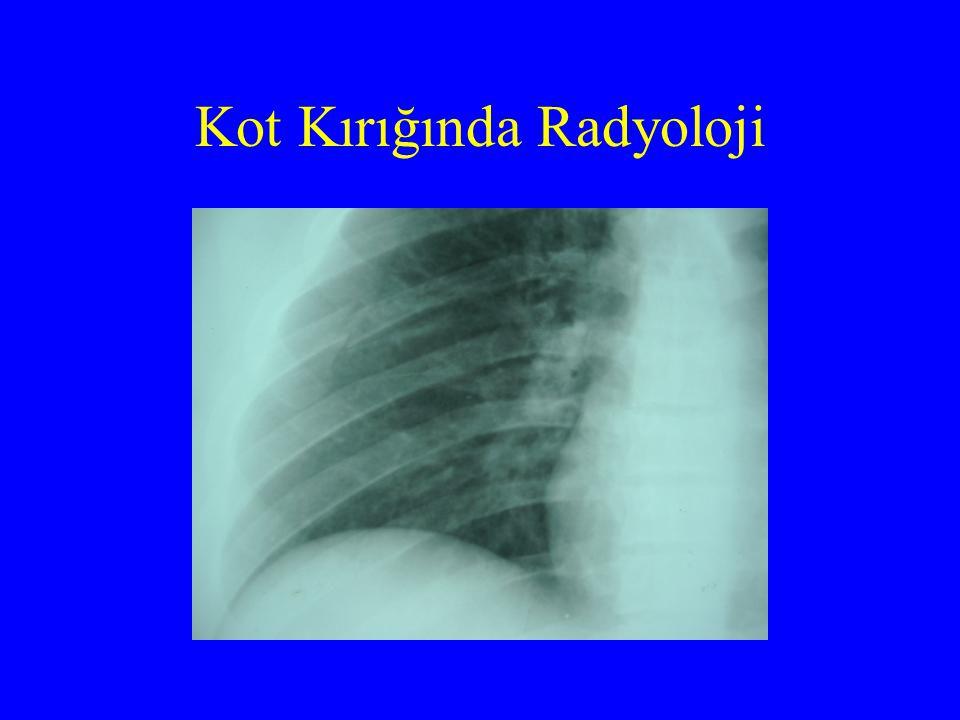Kot Kırığında Radyoloji