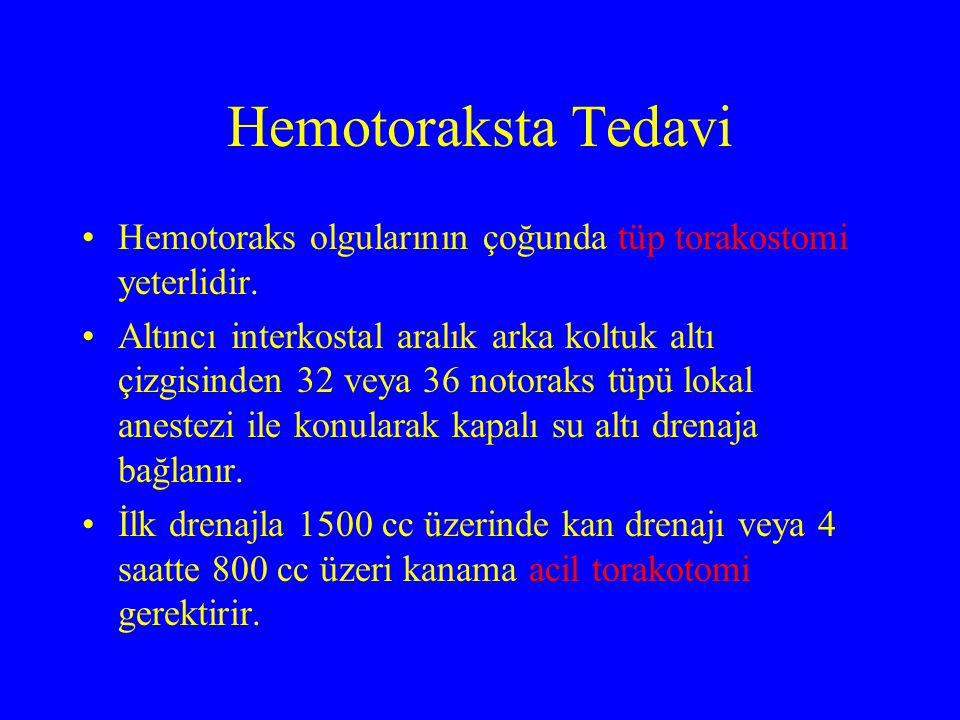Hemotoraksta Tedavi Hemotoraks olgularının çoğunda tüp torakostomi yeterlidir.